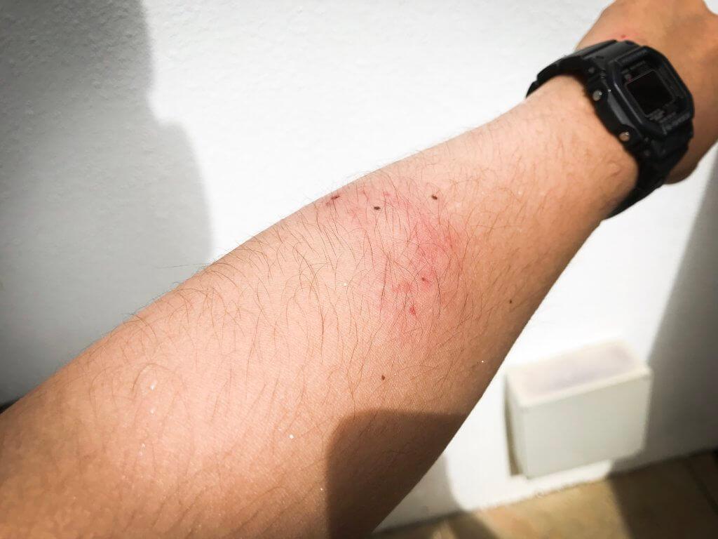 ゴマモンガラ 腕 噛まれた
